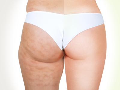 Anti Cellulite Programm